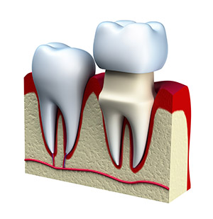 Advanced Dental Practices one day crowns