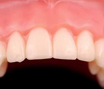 patients seeking the best replacement for missing teeth