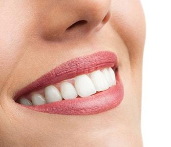 Cosmetic Teeth Whitening Wrentham MA