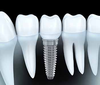 Wrentham area dentist explains the importance of dental implant