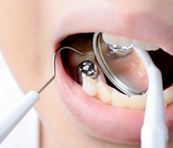 mercury dental filling on tooth removal
