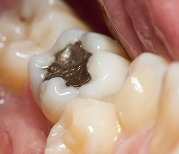 mercury dental filling on tooth