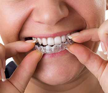 Dr. Ross K. Palioca Wrentham dentist offers a mouth guard for teeth grinding