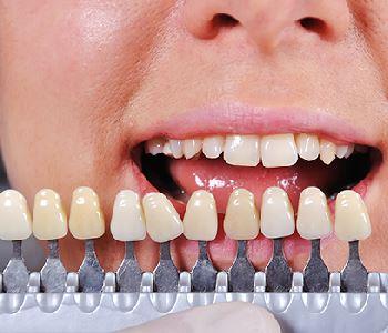 porcelain veneers at dentist