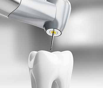 Wrentham can provide root canal therapy without the need for a specialist