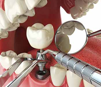 Dental Implant Cost Near Wrentham MA - Missing Teeth Solution