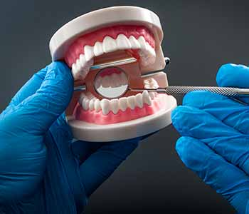 Dental restorations are porcelain pieces made to repair the smile when damage has occurred.