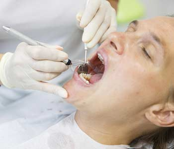 Patient getting her gum pocket depth measured with periodontal probe, held by dental hygienist