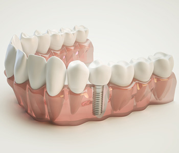 Why You Should Consider Dental Implants in Wrentham, MA area