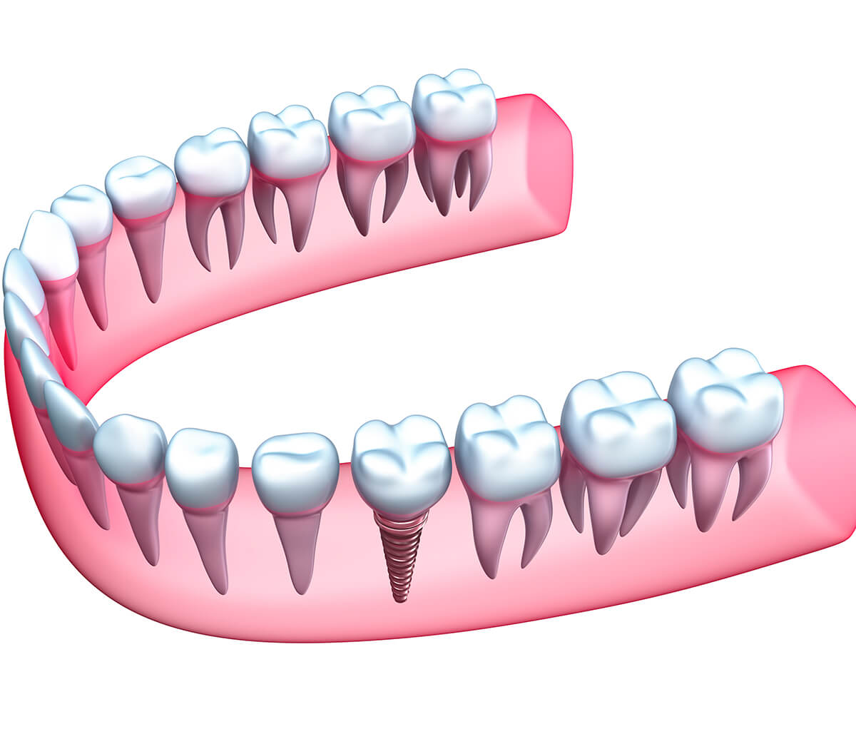 Dentist For Implants Advanced Dental Practices in Wrentham, MA Area